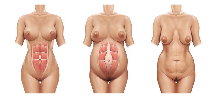 como es la diastasis abdominal tras el embarazo