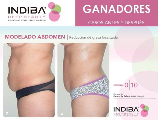 reducción de abdomen Indiba